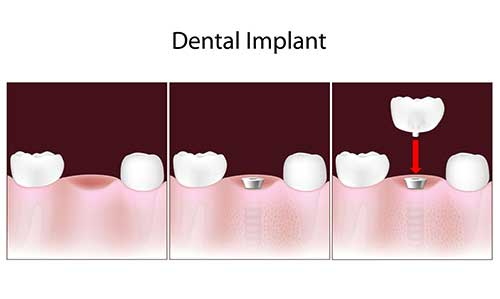 Bay Shore Implant Dentistry
