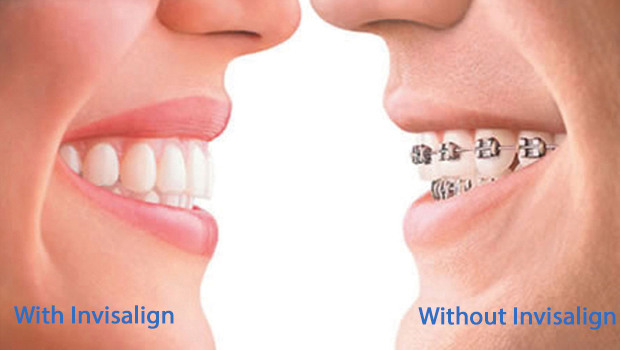 Invisalign in Bay Shore