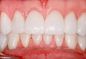 Before and After Dental Fillings in Bay Shore