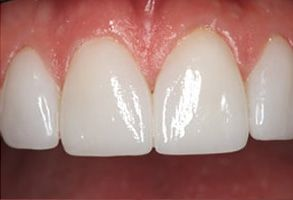 Before and After Dental Bleaching in Bay Shore