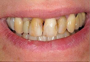 Before and After Dental Implants in Bay Shore