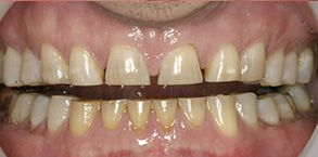 Bay Shore Before and After Dental Braces