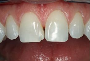 Bay Shore Before and After Dental Bleaching